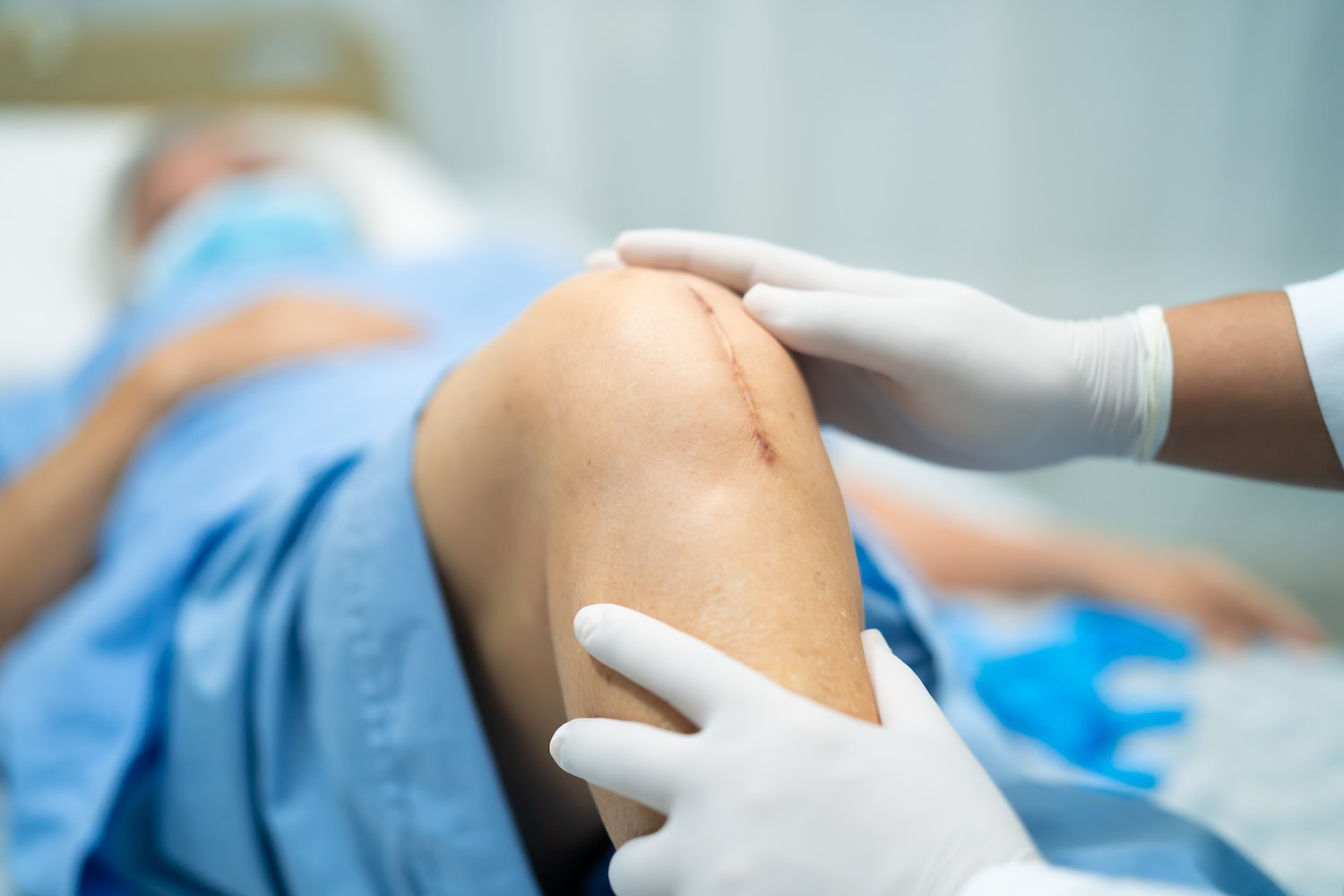 doctor or nurse checking a patient's knee wound stitches or sutures