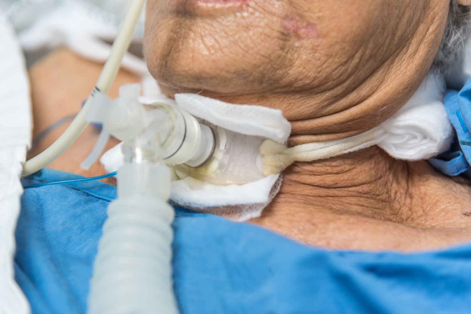 elderly woman with tracheostomy tube